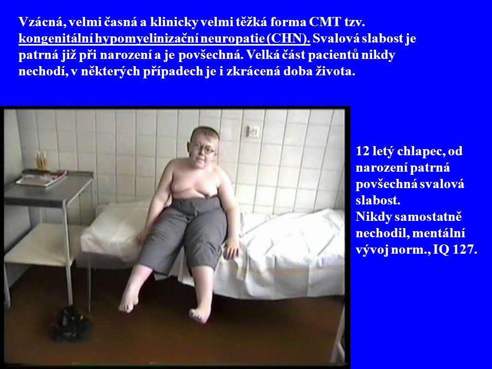 12 letý chlapec, od narození patrná povšechná svalová slabost.