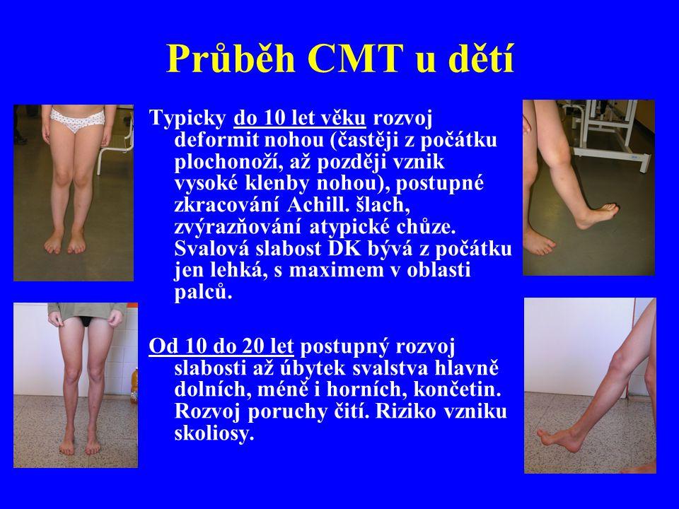 Průběh CMT u dětí Typicky do 10 let věku rozvoj deformit nohou (častěji z počátku plochonoží, až později vznik vysoké klenby nohou), postupné zkracování Achill.