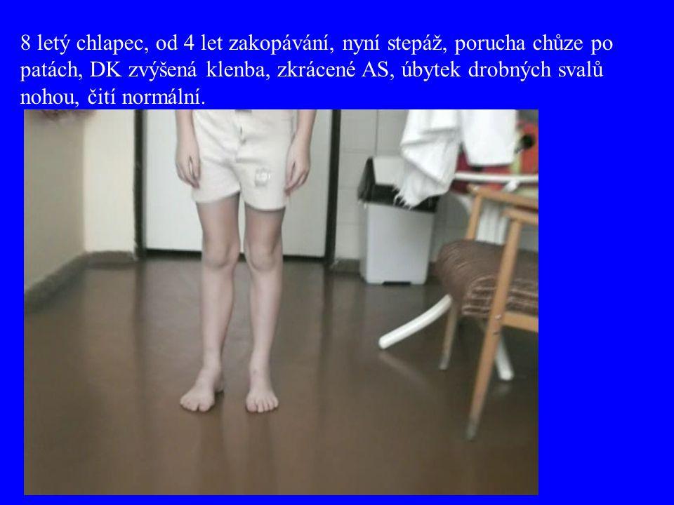 8 letý chlapec, od 4 let zakopávání, nyní stepáž, porucha chůze po patách, DK zvýšená klenba, zkrácené AS, úbytek drobných svalů nohou, čití normální.