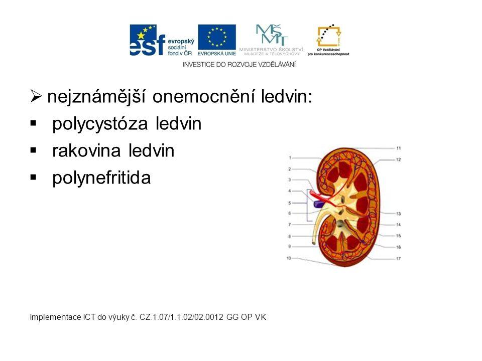  nejznámější onemocnění ledvin:  polycystóza ledvin  rakovina ledvin  polynefritida Implementace ICT do výuky č. CZ.1.07/1.1.02/02.0012 GG OP VK