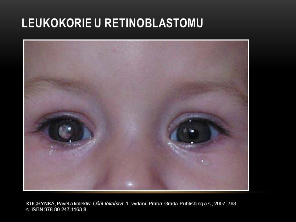 LEUKOKORIE U RETINOBLASTOMU KUCHYŇKA, Pavel a kolektiv. Oční lékařství. 1. vydání. Praha: Grada Publishing a.s., 2007, 768 s. ISBN 978-80-247-1163-8.