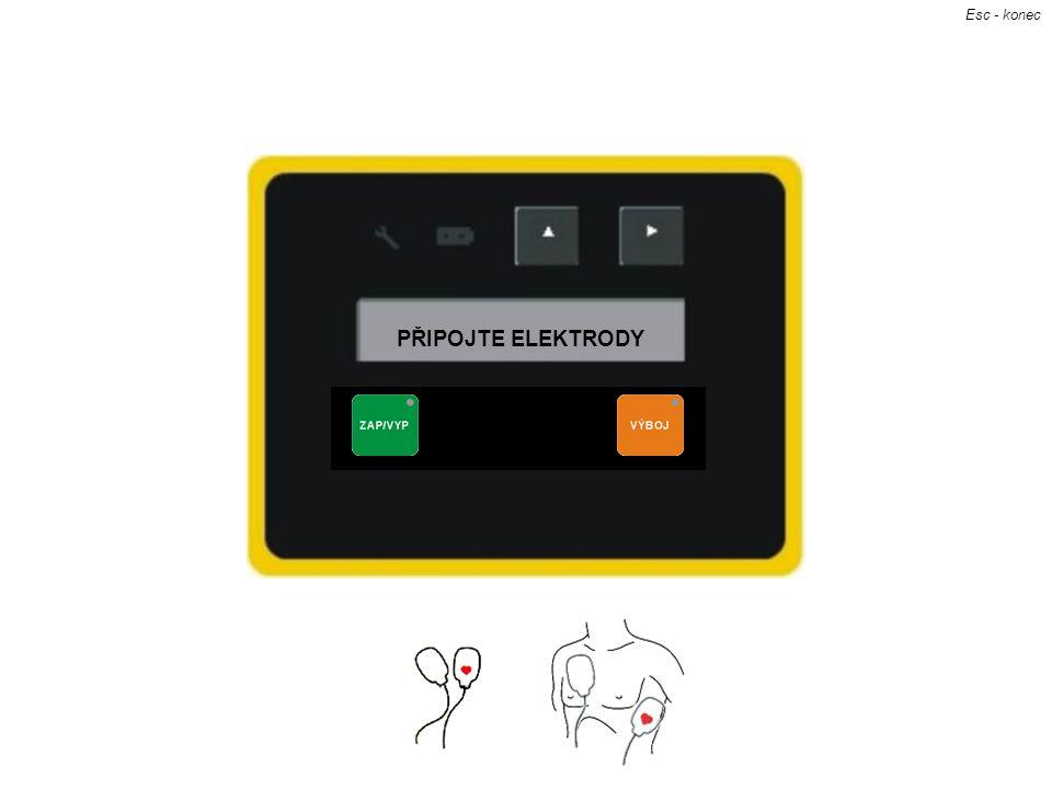 Elektrody připojíš kliknutím na obrázek elektrod PŘIPOJTE ELEKTRODY Esc - konec