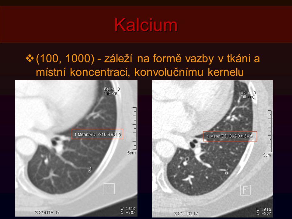 Kalcium  (100, 1000) - záleží na formě vazby v tkáni a místní koncentraci, konvolučnímu kernelu