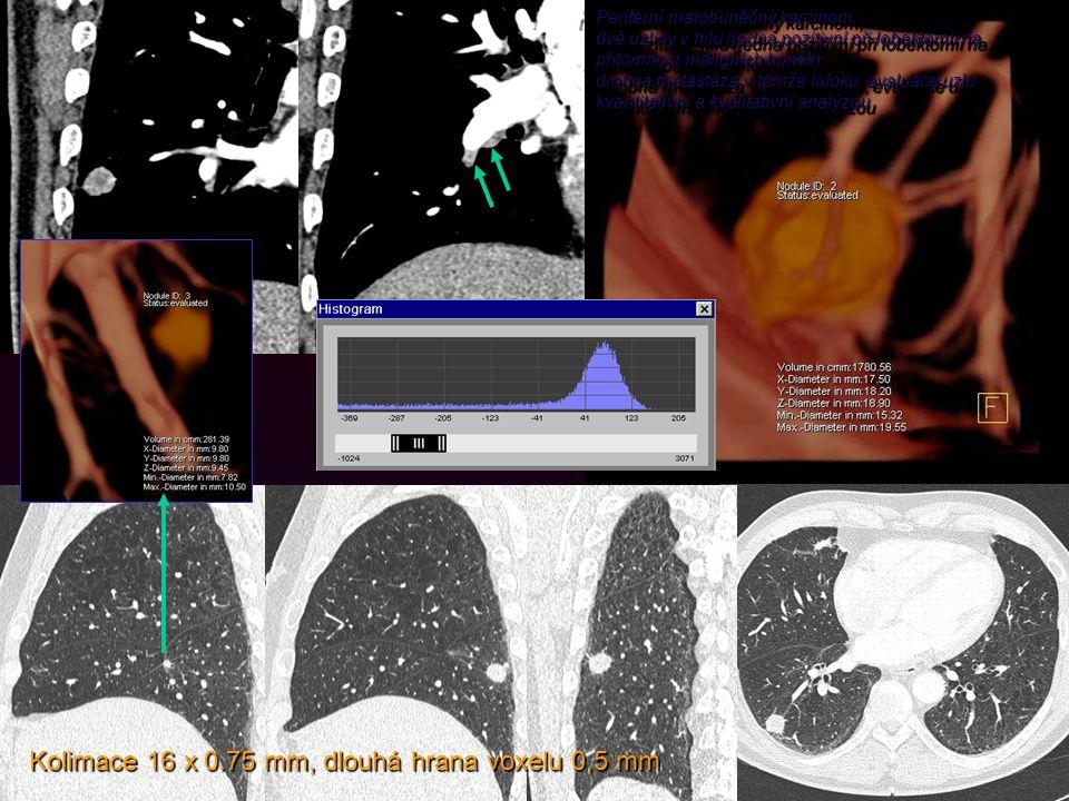 Periferní malobuněčný karcinom, dvě uzliny v hilu (jedna pozitivní při lobektomii na přítomnost maligních buněk), drobná metastáza v témže laloku, evaluace uzlu kvantitativní a kvalitativní analýzou Periferní malobuněčný karcinom, dvě uzliny v hilu (jedna pozitivní při lobektomii na přítomnost maligních buněk), drobná metastáza v témže laloku, evaluace uzlu kvantitativní a kvalitativní analýzou Kolimace 16 x 0.75 mm, dlouhá hrana voxelu 0,5 mm