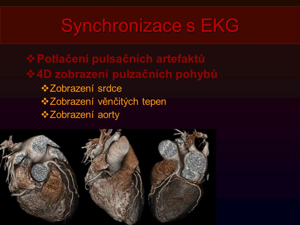 Synchronizace s EKG  Potlačení pulsačních artefaktů  4D zobrazení pulzačních pohybů  Zobrazení srdce  Zobrazení věnčitých tepen  Zobrazení aorty