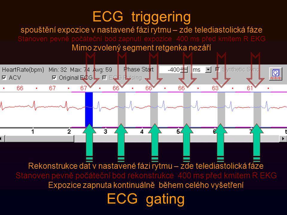 ECG triggering spouštění expozice v nastavené fázi rytmu – zde telediastolická fáze Stanoven pevně počáteční bod zapnutí expozice 400 ms před kmitem R EKG Mimo zvolený segment retgenka nezáří Rekonstrukce dat v nastavené fázi rytmu – zde telediastolická fáze Stanoven pevně počáteční bod rekonstrukce 400 ms před kmitem R EKG Expozice zapnuta kontinuálně během celého vyšetření ECG gating