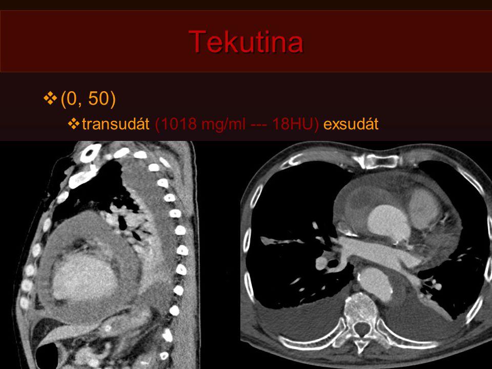 Tekutina  (0, 50)  transudát (1018 mg/ml --- 18HU) exsudát