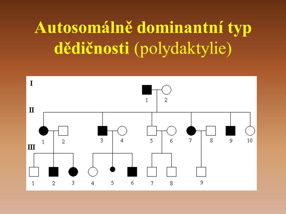 Autosomálně dominantní typ dědičnosti (polydaktylie)