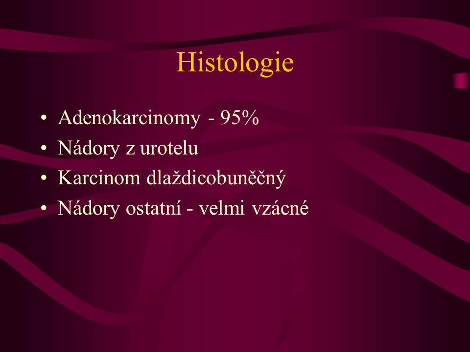 Histologie •Adenokarcinomy - 95% •Nádory z urotelu •Karcinom dlaždicobuněčný •Nádory ostatní - velmi vzácné