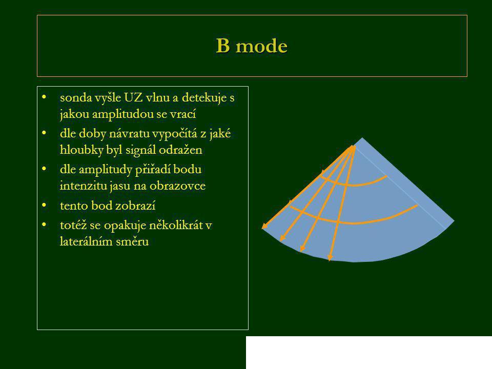 B mode •sonda vyšle UZ vlnu a detekuje s jakou amplitudou se vrací •dle doby návratu vypočítá z jaké hloubky byl signál odražen •dle amplitudy přiřadí bodu intenzitu jasu na obrazovce •tento bod zobrazí •totéž se opakuje několikrát v laterálním směru