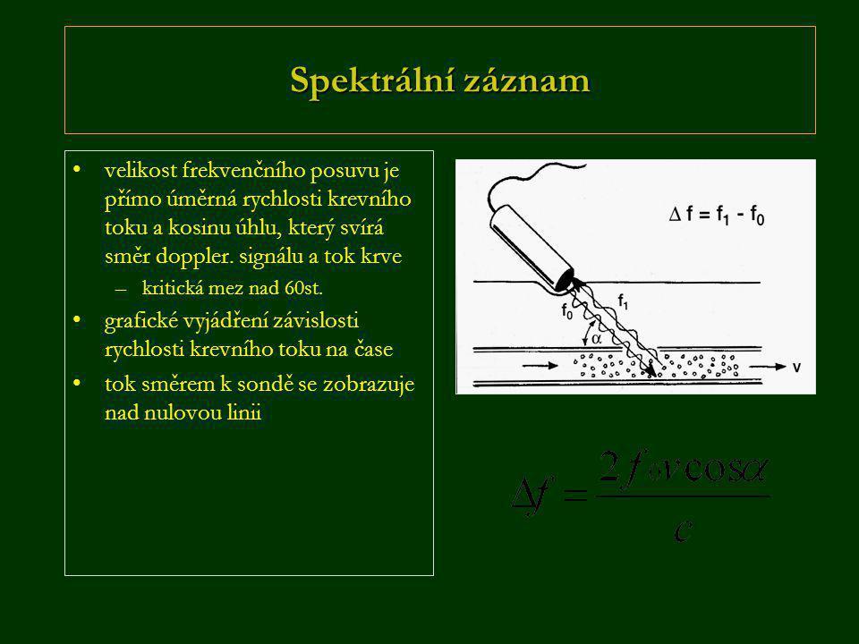 Spektrální záznam •velikost frekvenčního posuvu je přímo úměrná rychlosti krevního toku a kosinu úhlu, který svírá směr doppler. signálu a tok krve –k