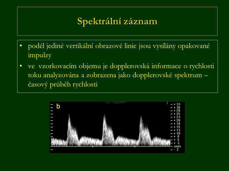 Spektrální záznam •podél jediné vertikální obrazové linie jsou vysílány opakované impulzy •ve vzorkovacím objemu je dopplerovská informace o rychlosti toku analyzována a zobrazena jako dopplerovské spektrum – časový průběh rychlosti