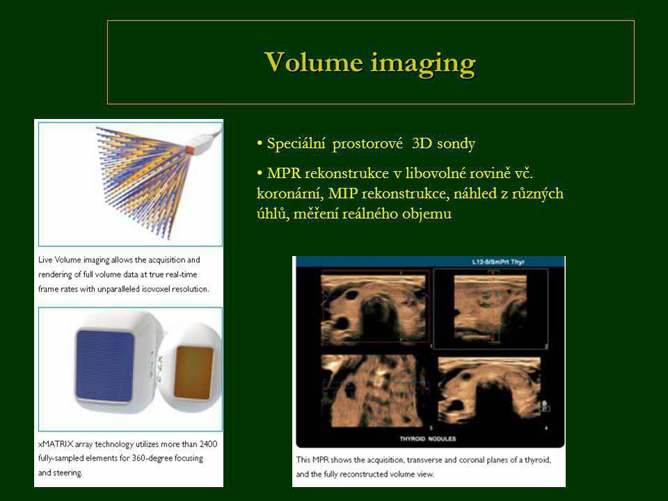Volume imaging • Speciální prostorové 3D sondy • MPR rekonstrukce v libovolné rovině vč. koronární, MIP rekonstrukce, náhled z různých úhlů, měření re
