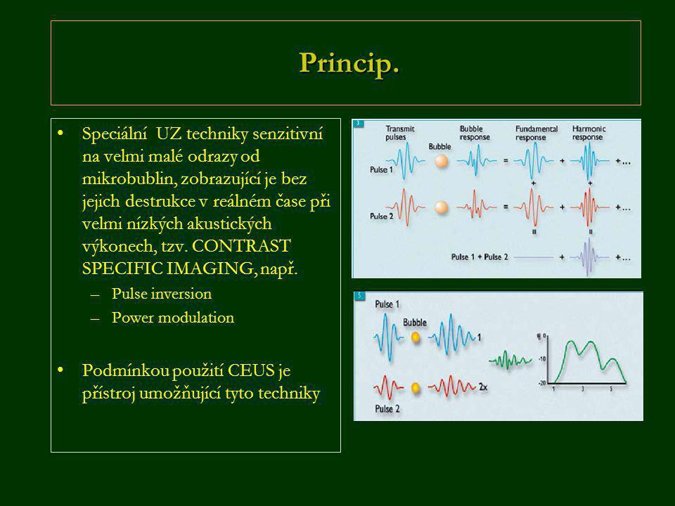 Princip. Princip. •Speciální UZ techniky senzitivní na velmi malé odrazy od mikrobublin, zobrazující je bez jejich destrukce v reálném čase při velmi