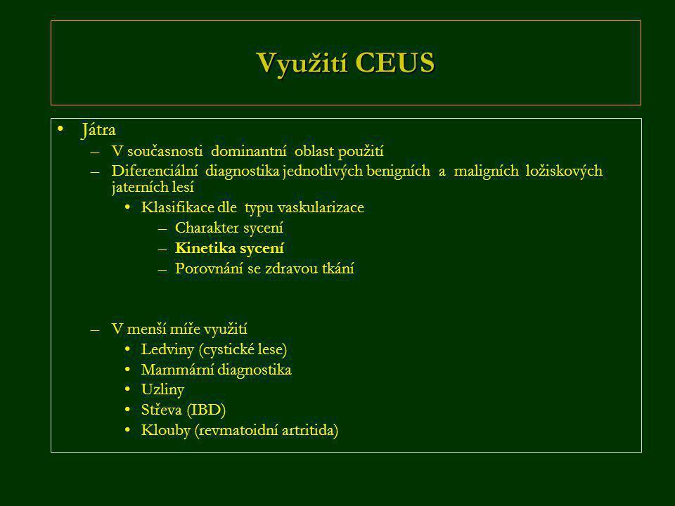 Využití CEUS •Játra –V současnosti dominantní oblast použití –Diferenciální diagnostika jednotlivých benigních a maligních ložiskových jaterních lesí