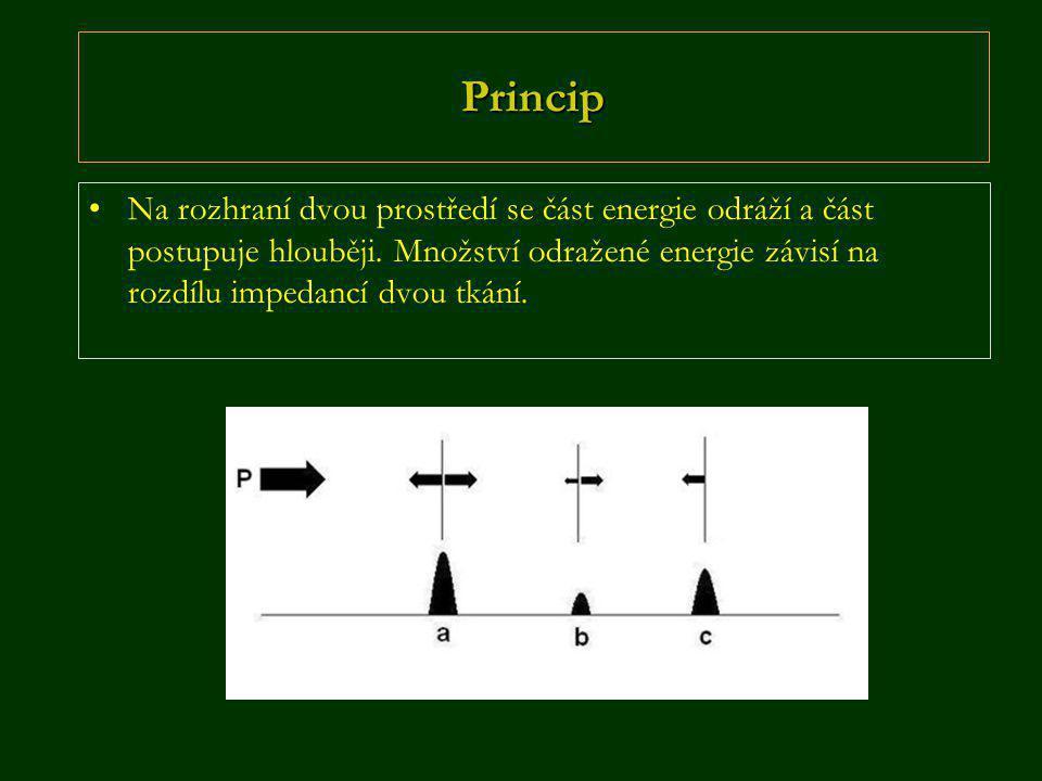 Princip •Na rozhraní dvou prostředí se část energie odráží a část postupuje hlouběji. Množství odražené energie závisí na rozdílu impedancí dvou tkání
