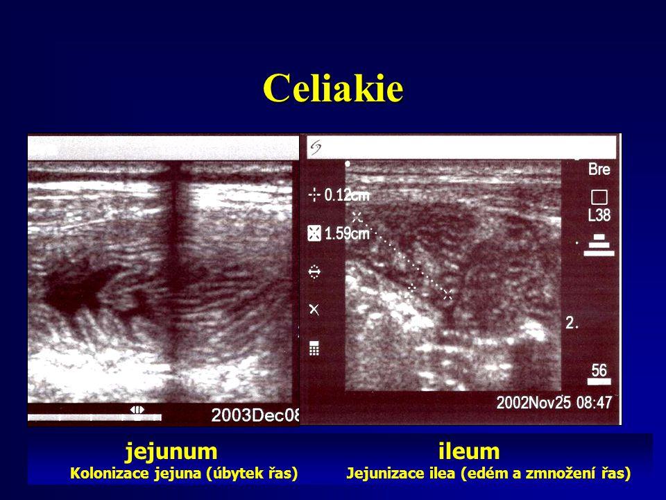 jejunum ileum Kolonizace jejuna (úbytek řas) Jejunizace ilea (edém a zmnožení řas) Celiakie