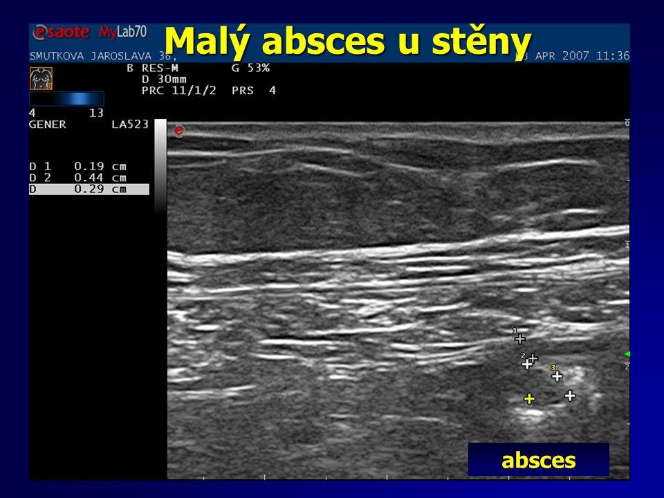 Malý absces u stěny absces
