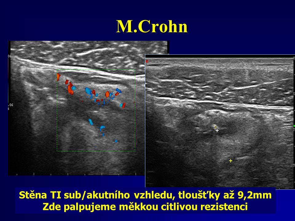 M.Crohn Stěna TI sub/akutního vzhledu, tloušťky až 9,2mm Zde palpujeme měkkou citlivou rezistenci