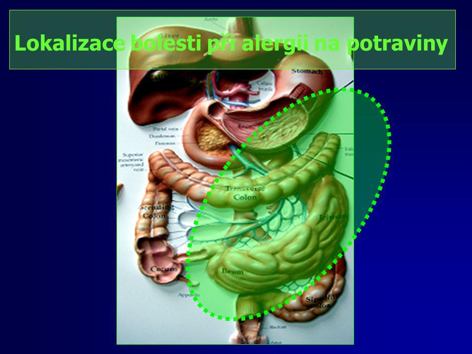 Statistika Naše ordinace (období: 2000 – září/2007) 754 pozitivních záchytů - alergiků -82 Celiakie, vysoké hladiny: glia+++, endomysia+++ trangl.400, IgE: pšen.mouka 1-10j, gluten 1-10j) -223 nízká pozitivita i několika alergenů (gliadinu, glutenu, endomysia, transglut., pšen.mouky) -118 žito, žitná mouka -291 Mléko, Laktalbumín, Kasein -78-131 bříza, bílek, -26-66 brambory, káva, ořechy, jablka, kakao, banán -17-31 pomeranč, rajče, maso, mák, sója, mrkev -2-8 glutaman, želatina, benzoan, čaj, droždí, kmín, chlad