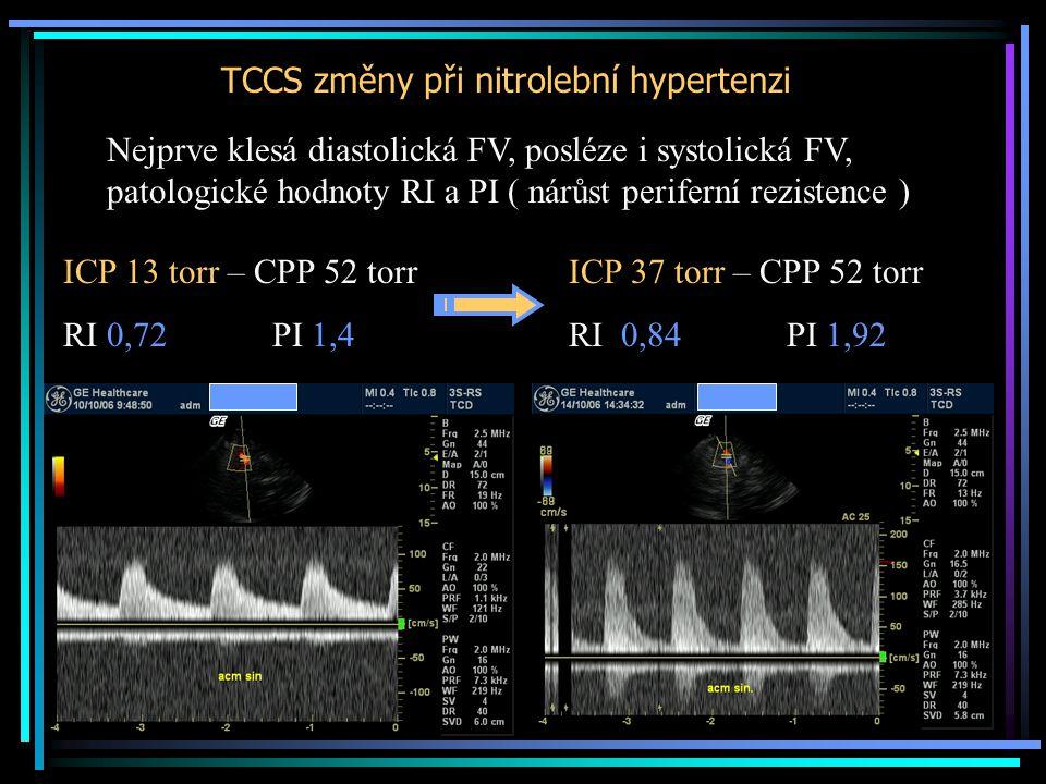 TCCS změny při nitrolební hypertenzi ICP 13 torr – CPP 52 torr RI 0,72 PI 1,4 ICP 37 torr – CPP 52 torr RI 0,84 PI 1,92 Nejprve klesá diastolická FV,