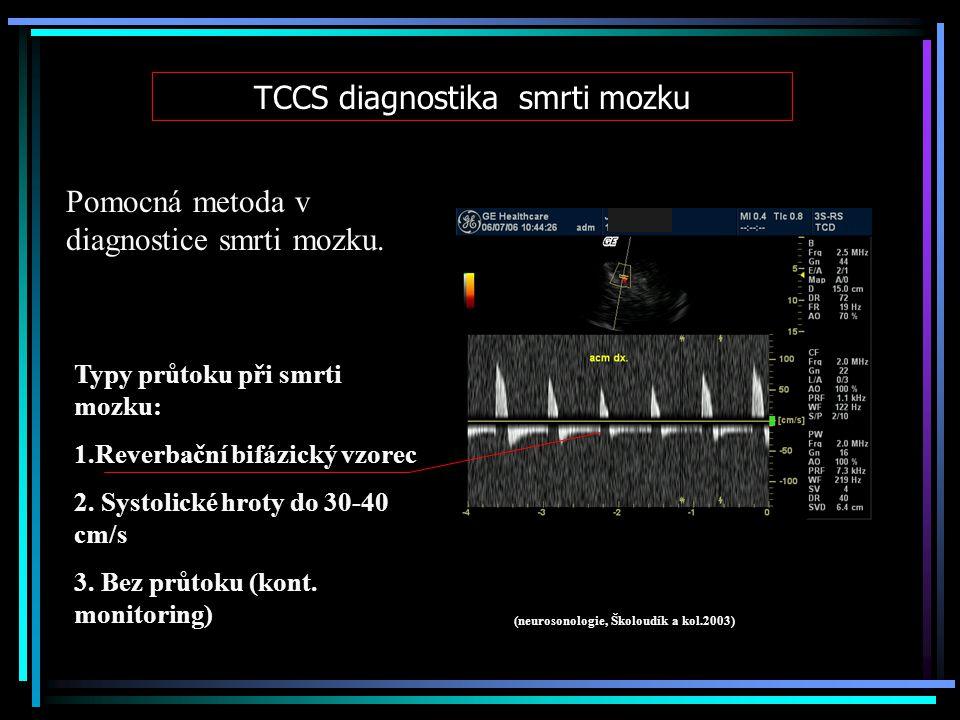TCCS diagnostika smrti mozku Pomocná metoda v diagnostice smrti mozku. Typy průtoku při smrti mozku: 1.Reverbační bifázický vzorec 2. Systolické hroty