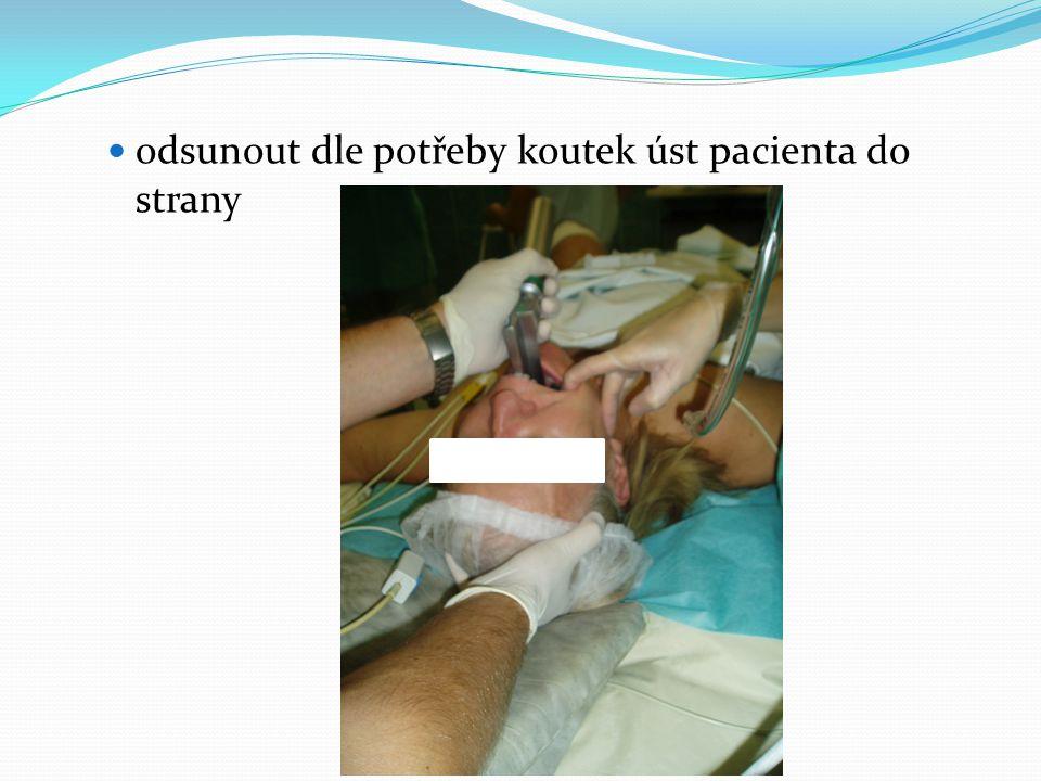  odsunout dle potřeby koutek úst pacienta do strany