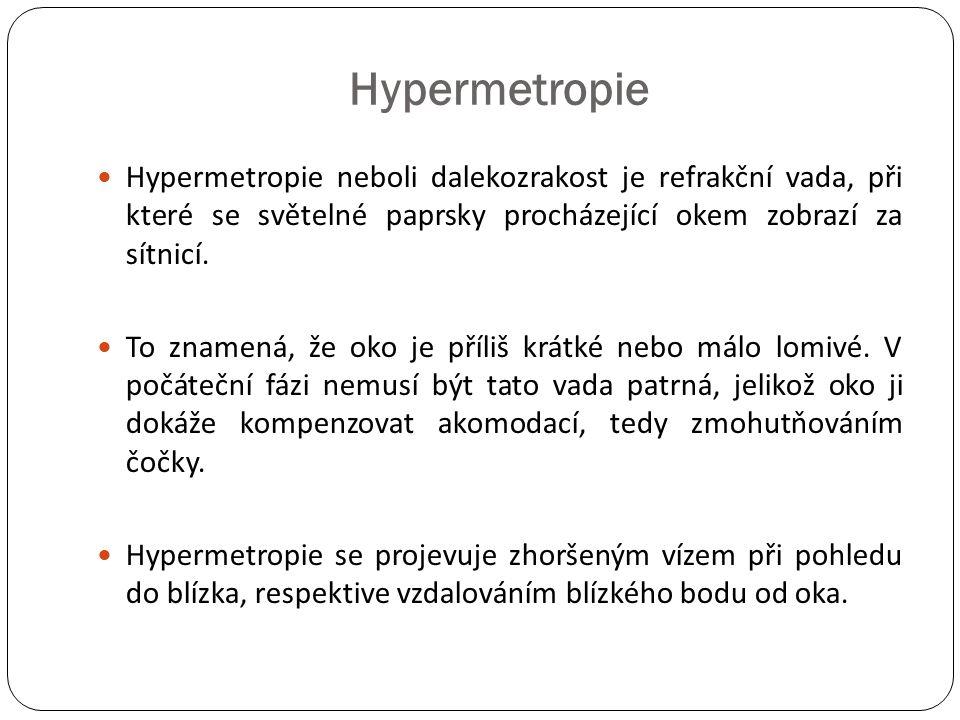 Hypermetropie  Hypermetropie neboli dalekozrakost je refrakční vada, při které se světelné paprsky procházející okem zobrazí za sítnicí.  To znamená