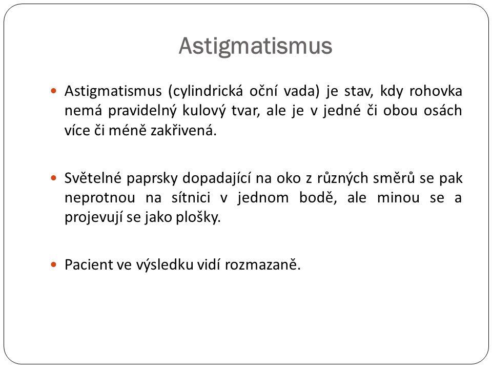 Astigmatismus  Astigmatismus (cylindrická oční vada) je stav, kdy rohovka nemá pravidelný kulový tvar, ale je v jedné či obou osách více či méně zakř
