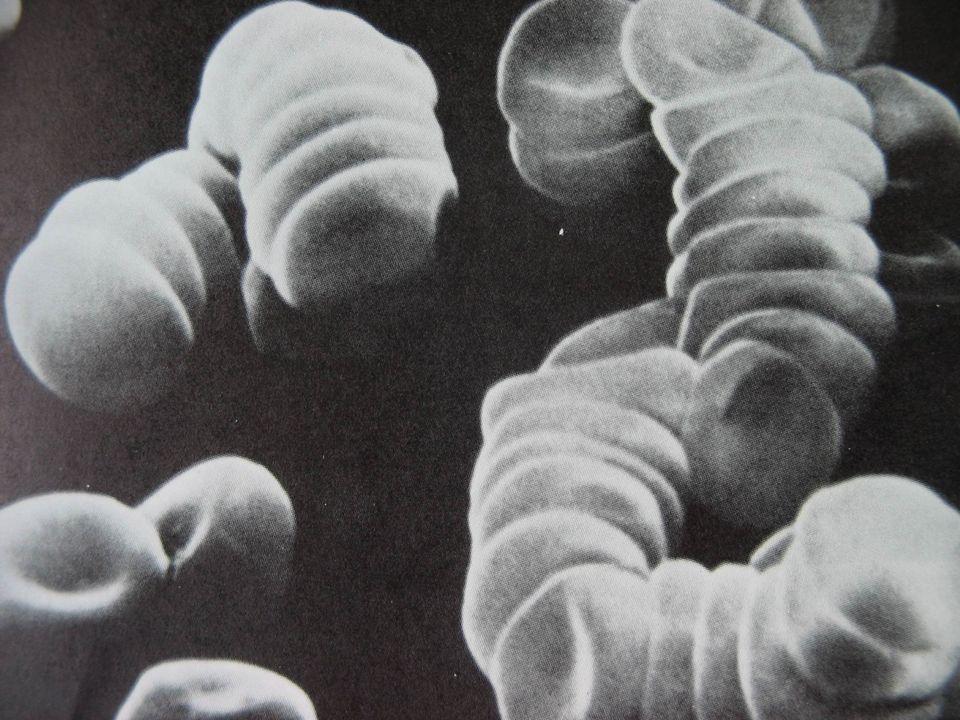 •Jonesova kriteria (1944) : •maior - karditis, polyarthritis, chorea, ertyhema marginatum, subkut.
