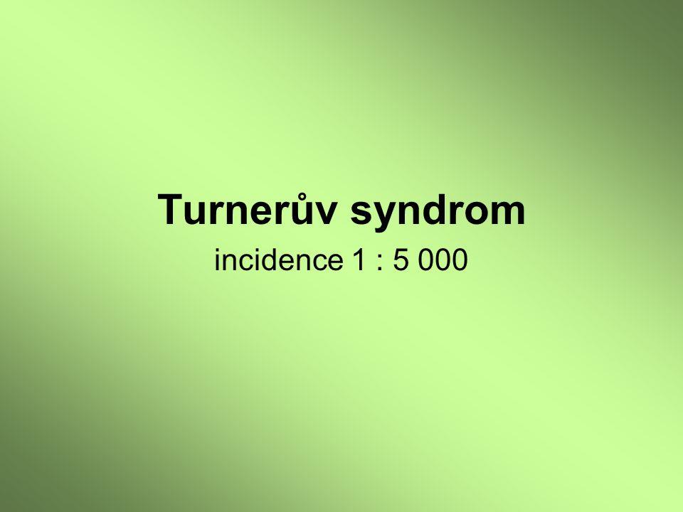 Turnerův syndrom incidence 1 : 5 000