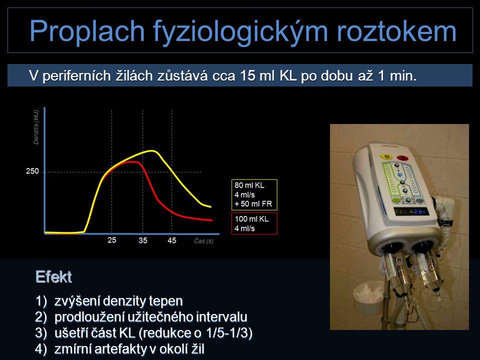 Proplach fyziologickým roztokem V periferních žilách zůstává cca 15 ml KL po dobu až 1 min. V periferních žilách zůstává cca 15 ml KL po dobu až 1 min