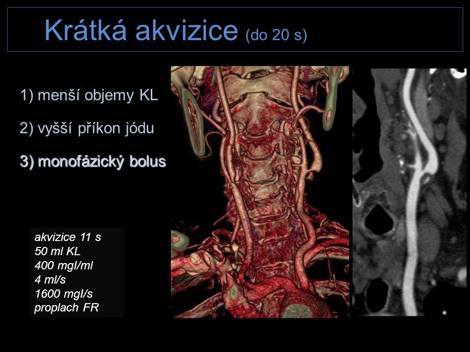 Krátká akvizice (do 20 s) 2) vyšší příkon jódu 3) monofázický bolus 1) menší objemy KL akvizice 11 s 50 ml KL 400 mgI/ml 4 ml/s 1600 mgI/s proplach FR