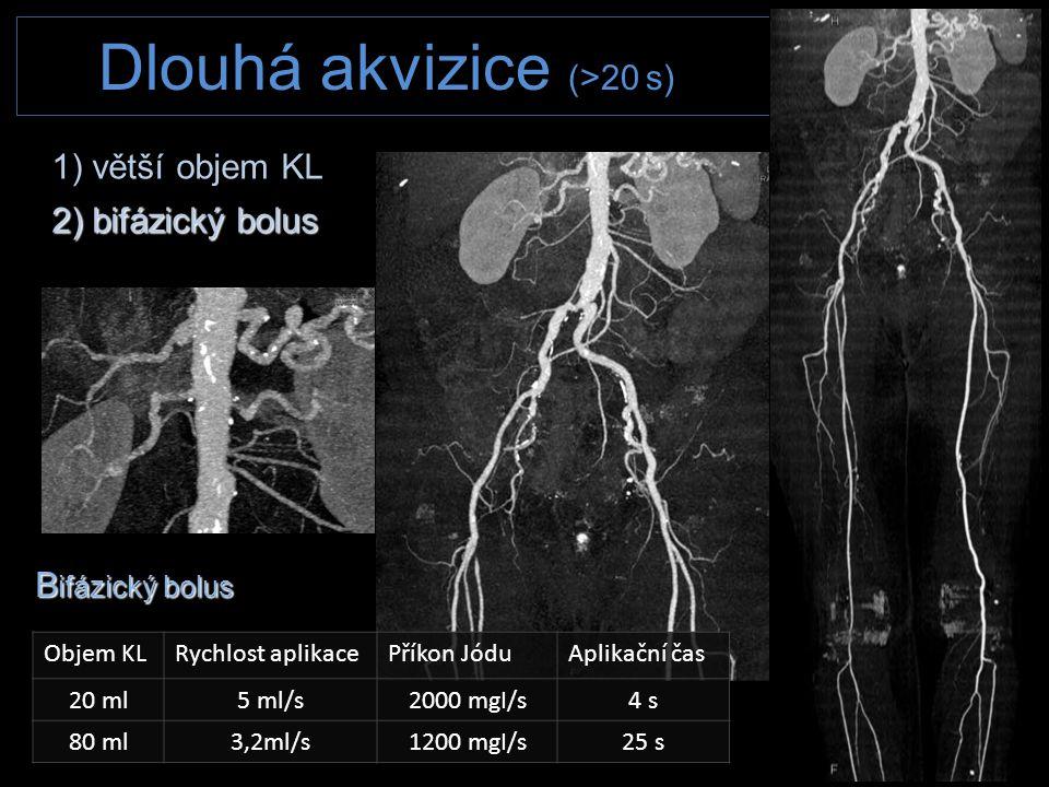 B ifázický bolus Objem KLRychlost aplikacePříkon JóduAplikační čas 20 ml5 ml/s2000 mgI/s4 s 80 ml3,2ml/s1200 mgI/s25 s 1) větší objem KL 2) bifázický