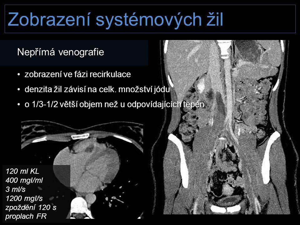 Zobrazení systémových žil Nepřímá venografie • zobrazení ve fázi recirkulace • denzita žil závisí na celk. množství jódu • o 1/3-1/2 větší objem než u
