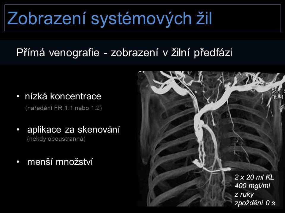 Zobrazení systémových žil Přímá venografie - zobrazení v žilní předfázi • nízká koncentrace (naředění FR 1:1 nebo 1:2) (naředění FR 1:1 nebo 1:2) • ap