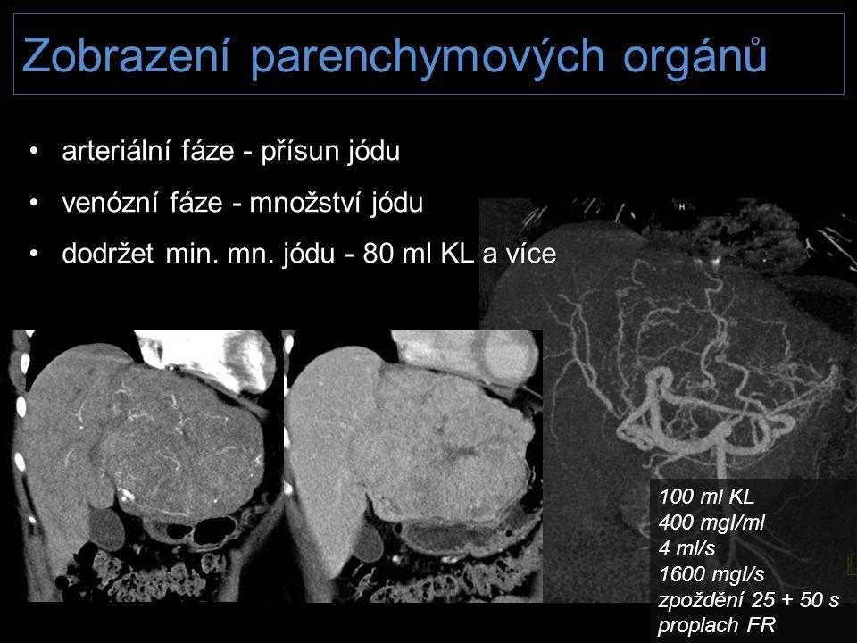 Zobrazení parenchymových orgánů • arteriální fáze - přísun jódu • venózní fáze - množství jódu • dodržet min. mn. jódu - 80 ml KL a více 100 ml KL 400