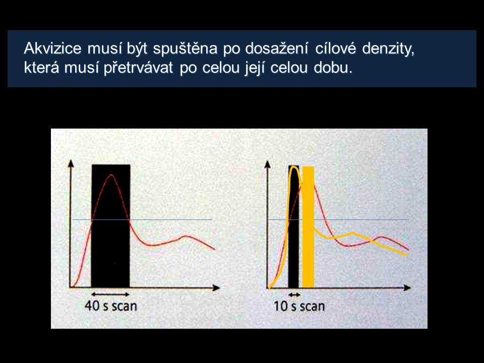 Ideální bolus Ideální vývoj denzit v tepněIdeální bolus KL • rychlý nárůst denzity • plateau po celou dobu akvizice • v úvodu menší objem KL větší rychlostí • poté zbytek pomaleji