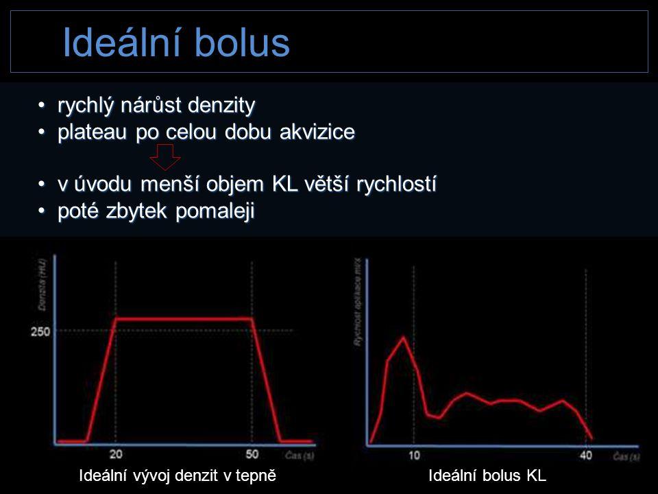 Ideální bolus Ideální vývoj denzit v tepněIdeální bolus KL • rychlý nárůst denzity • plateau po celou dobu akvizice • v úvodu menší objem KL větší ryc