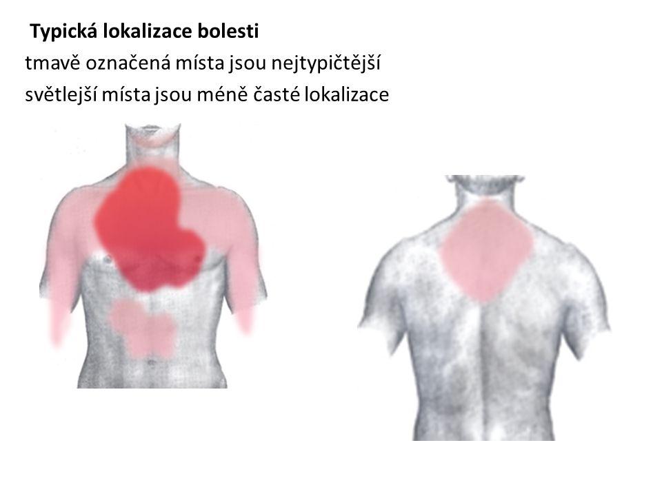 Typická lokalizace bolesti tmavě označená místa jsou nejtypičtější světlejší místa jsou méně časté lokalizace