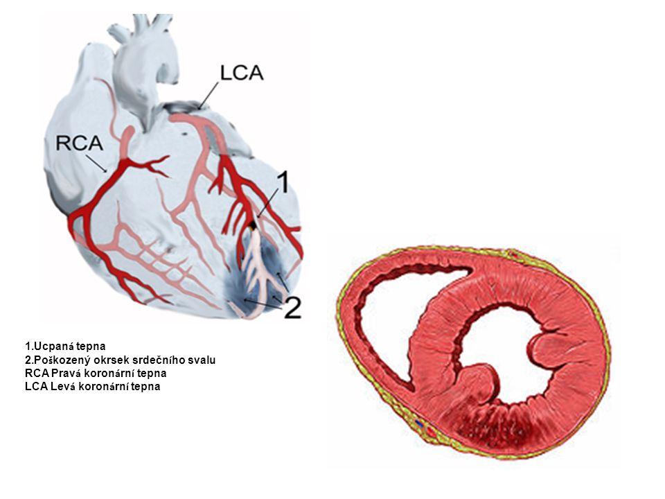Příčiny  nemoc je většinou způsobena aterosklerózou věnčitých tepen  při tomto chronickém onemocnění dochází k nahromaděním částic tuku, cholesterolu, vápníku a dalších látek na vnitřní straně stěny tepny, které způsobí její zužování  ukázalo se, že takové hromadění tukových částic a vápníku usnadňují rizikové faktory, přičemž platí, čím je jich více, tím větší je možnost vzniku a rozvoje onemocnění  při postupném zužování cévy mohou vznikat námahové potíže, pak hovoříme o angině pectoris  při náhlém uzávěru vzniká infarkt  spouštěcím mechanismem bývá často i stres, náhlá změna počasí, chlad