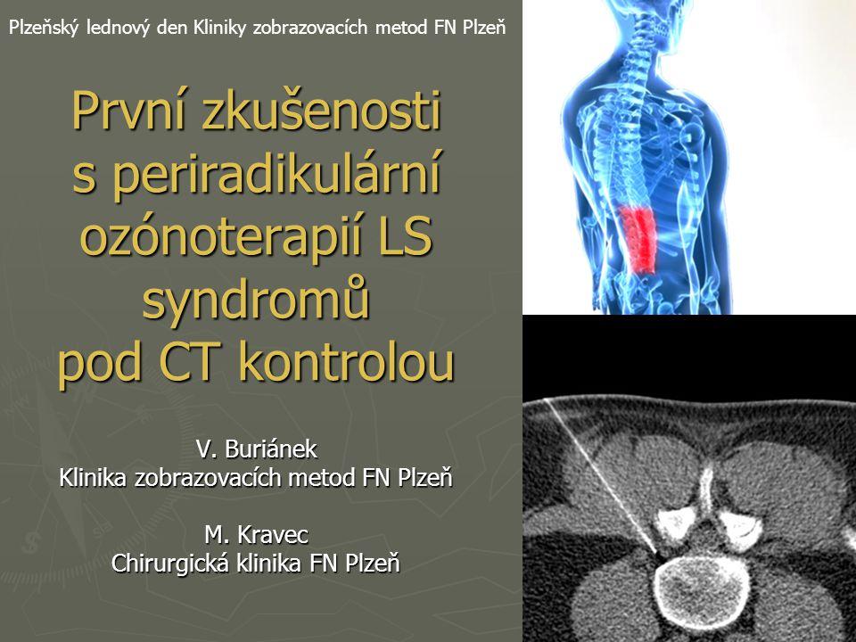 První zkušenosti s periradikulární ozónoterapií LS syndromů pod CT kontrolou V. Buriánek Klinika zobrazovacích metod FN Plzeň M. Kravec Chirurgická kl