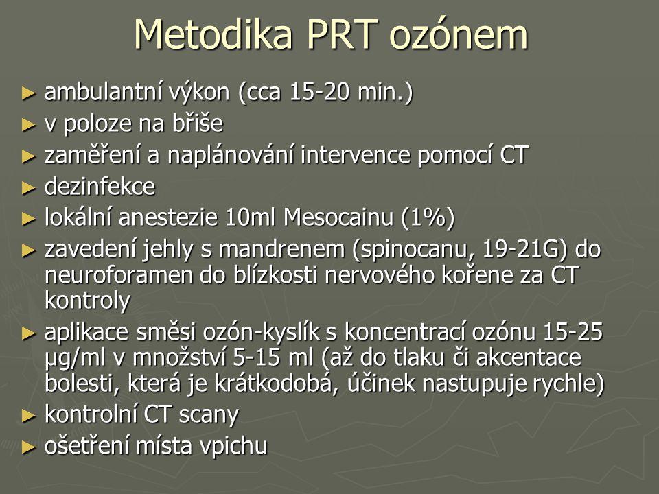 Metodika PRT ozónem ► ambulantní výkon (cca 15-20 min.) ► v poloze na břiše ► zaměření a naplánování intervence pomocí CT ► dezinfekce ► lokální anest