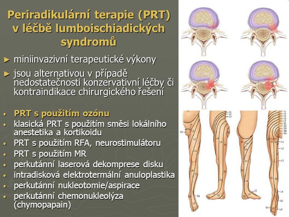 Periradikulární terapie (PRT) v léčbě lumboischiadických syndromů ► miniinvazivní terapeutické výkony ► jsou alternativou v případě nedostatečnosti ko