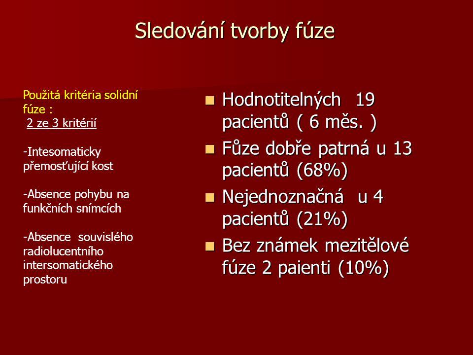 Sledování tvorby fúze  Hodnotitelných 19 pacientů ( 6 měs. )  Fůze dobře patrná u 13 pacientů (68%)  Nejednoznačná u 4 pacientů (21%)  Bez známek