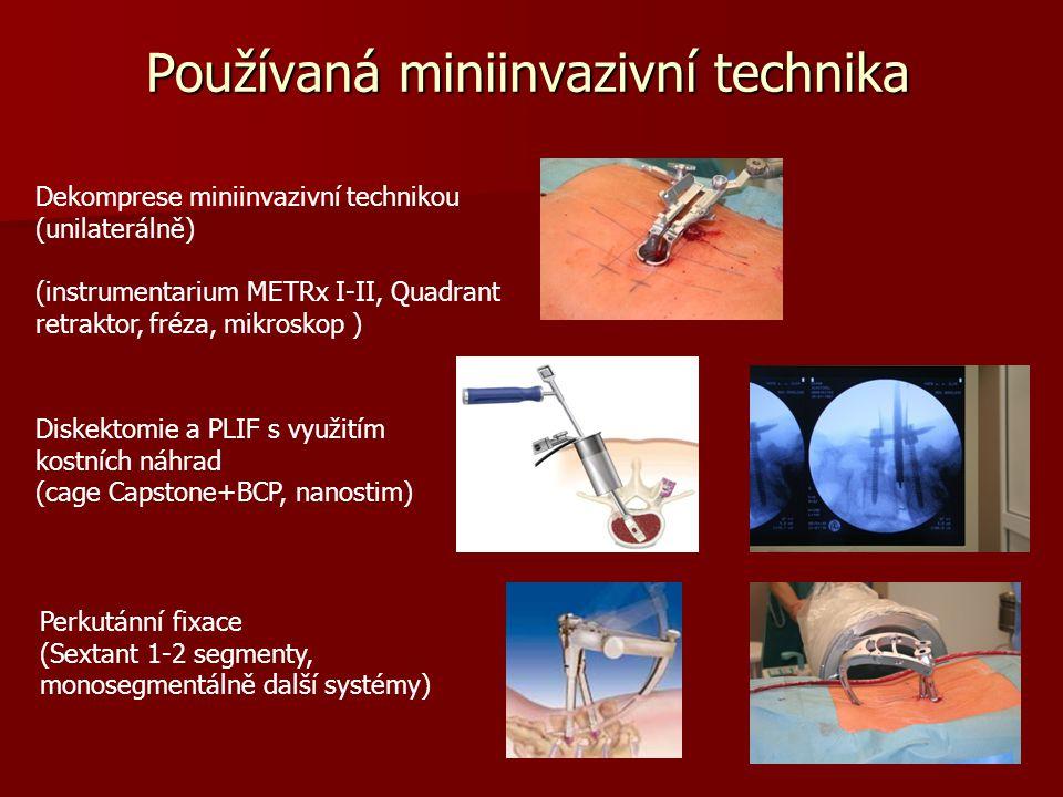 Používaná miniinvazivní technika Dekomprese miniinvazivní technikou (unilaterálně) (instrumentarium METRx I-II, Quadrant retraktor, fréza, mikroskop ) Diskektomie a PLIF s využitím kostních náhrad (cage Capstone+BCP, nanostim) Perkutánní fixace (Sextant 1-2 segmenty, monosegmentálně další systémy)