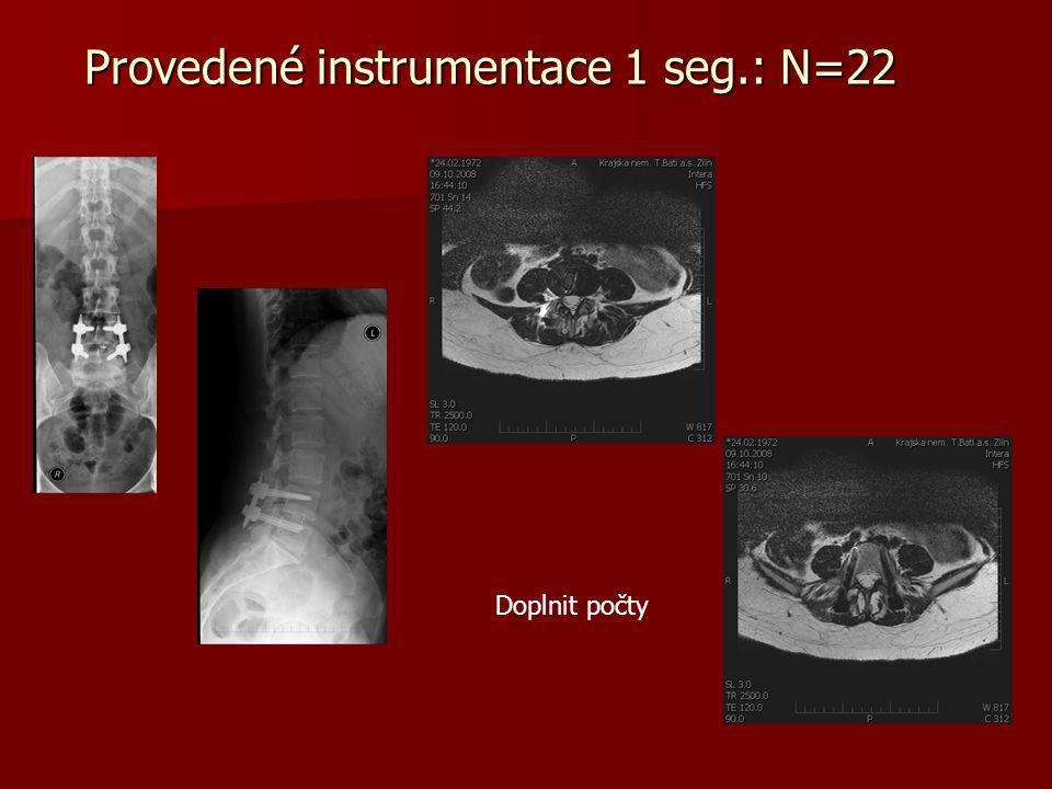 Provedené instrumentace - 2 segmenty: N=5 L3-L5 L3-4-5 L4-L5-S1 Zaznamenali jsem těžkosti se zavádění středního párů šroubů a rovněž při zavedení tyčí při fixacích S1 – nutno najít optimální výškovou polohu šroubu.