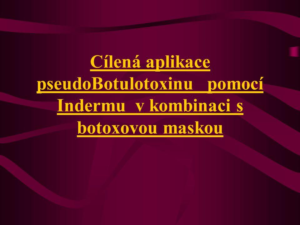 Cílená aplikace pseudoBotulotoxinu pomocí Indermu v kombinaci s botoxovou maskou