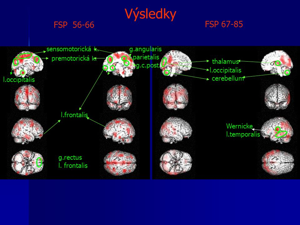 FSP 56-66 FSP 67-85 Výsledky sensomotorická k. premotorická k. l.occipitalis g.angularis l.parietalis g.c.post. l.frontalis l.occipitalis cerebellum W