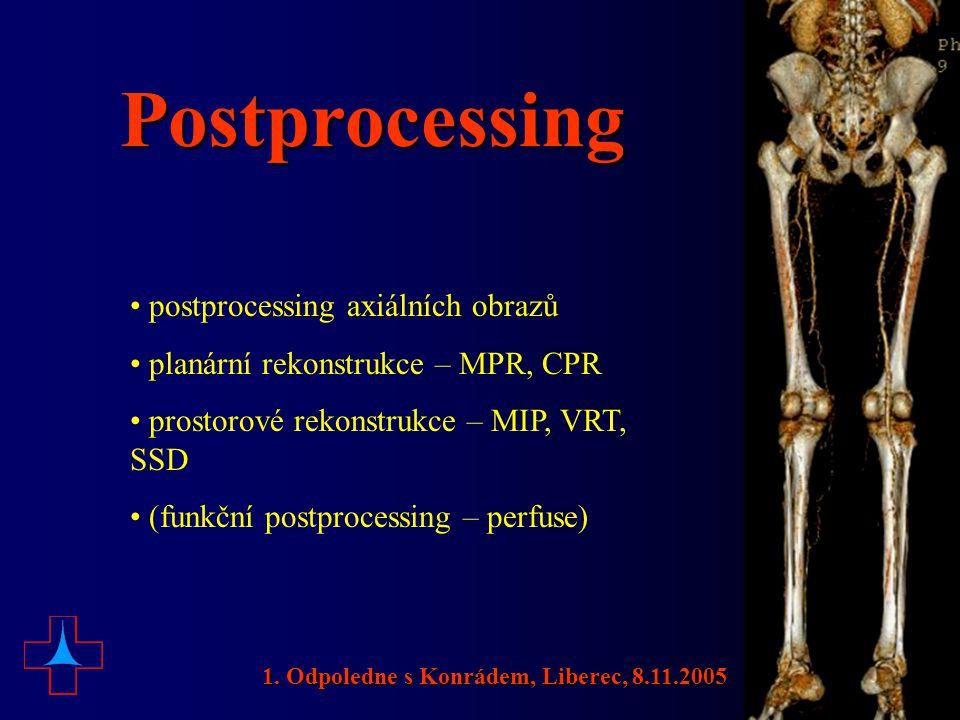 Postprocessing • postprocessing axiálních obrazů • planární rekonstrukce – MPR, CPR • prostorové rekonstrukce – MIP, VRT, SSD • (funkční postprocessin